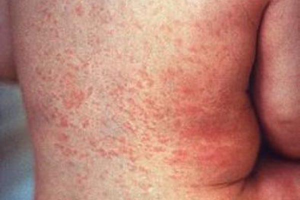 La rosolia nel bambino: contagiosità, sintomi, decorso, terapia e vaccino