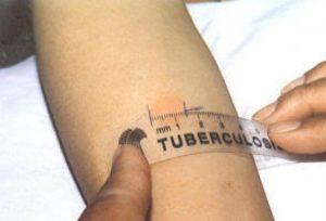 La tubercolosi: cosa è il test di Mantoux (o alla tubercolina?)