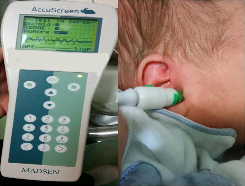 Lo screening uditivo del neonato: come funziona, come interpretarlo e quando allarmarsi.
