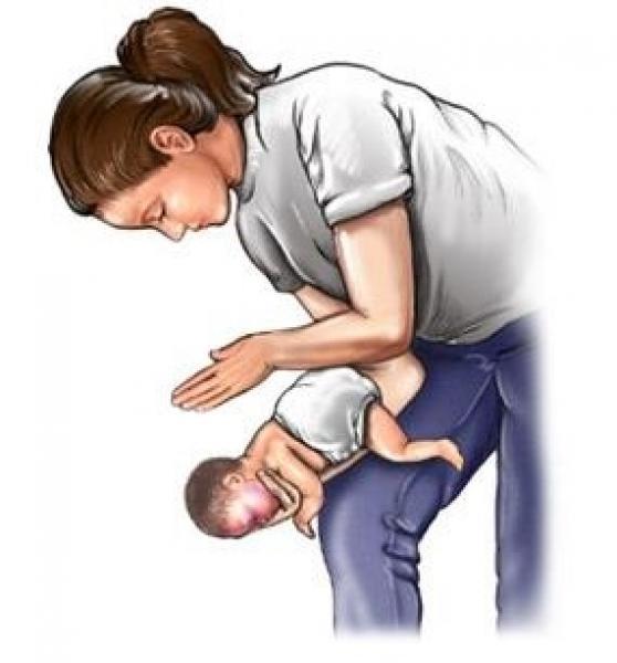 Le manovre di disostruzione respiratoria – antisoffocamento nel lattante