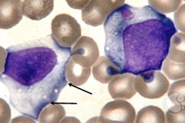 Mononucleosi: quali esami di laboratorio eseguire?