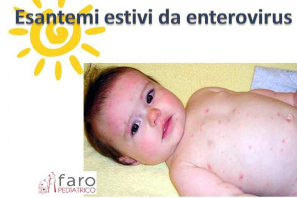 Esantemi estivi da enterovirus nei bambini