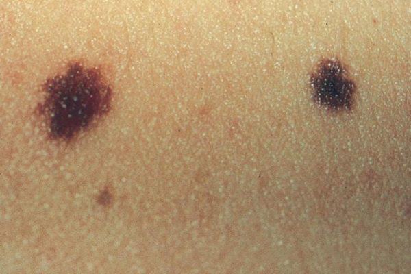 29 GIUGNO 2014 Giornata Gratuita per il controllo dei NEI cutanei e la prevenzione del melanoma