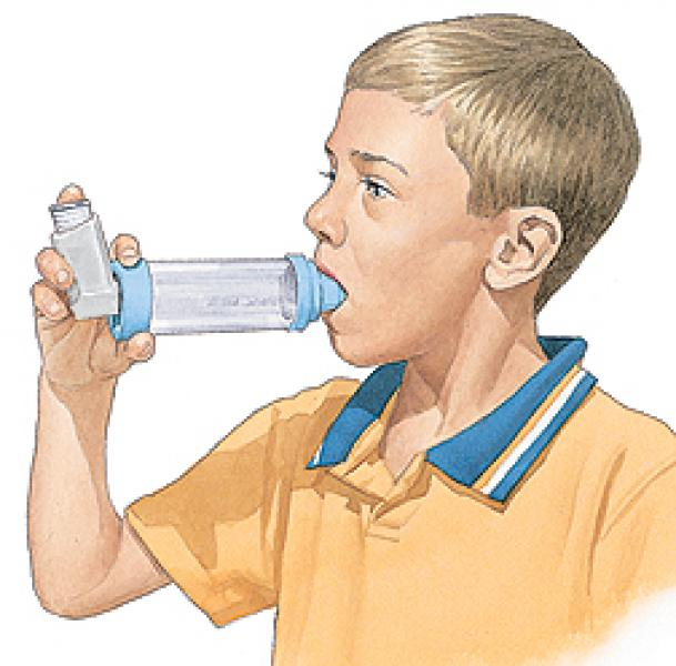 Asma e bronchite asmatica in bambini: cause, sintomi, allergia, terapia
