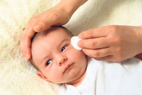 """La dacriocistite congenita del neonato: come si riconosce il """"canaletto ostruito""""?"""