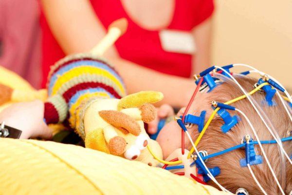 Epilessia: conosciamola meglio | Faropediatrico